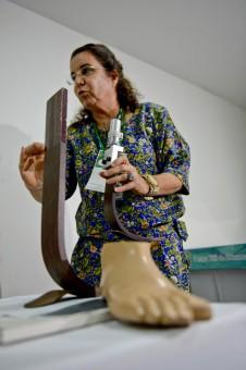 bioprotese